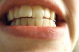 Minden, amit tudni érdemes a szájvizekről
