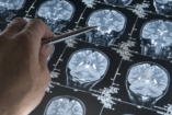 Mi van egy koraszülött agyában?