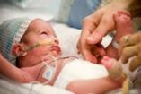 Koraszülöttek: babák, akik idő előtt érkeznek