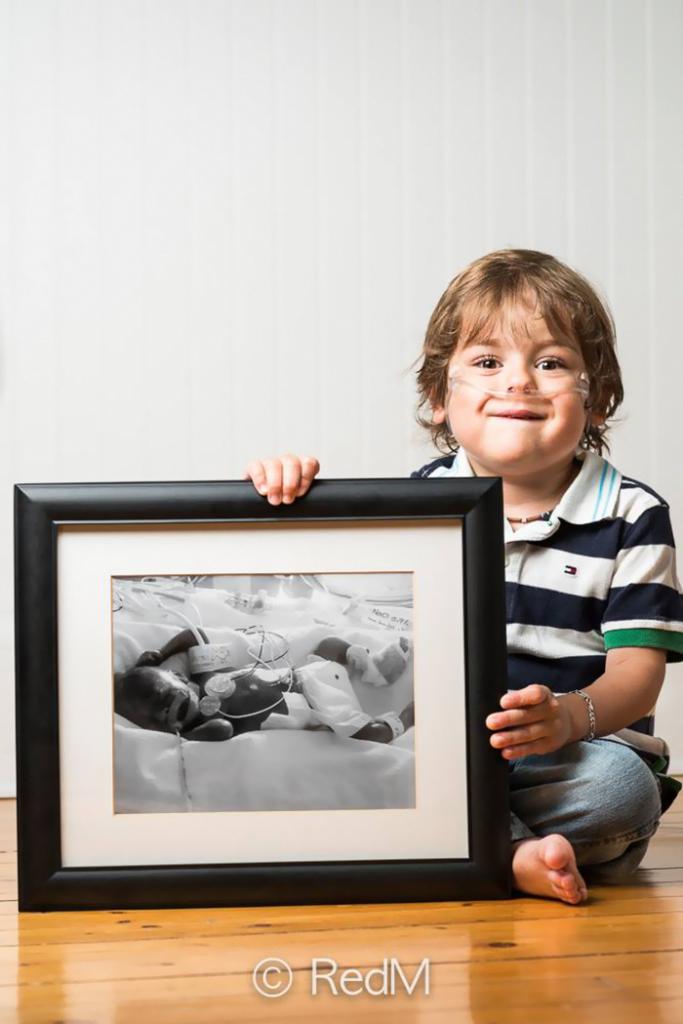 Csodálatos előtte-utána fotók koraszülött gyerkőcökről