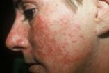 Alattomos bőrbetegség a rozacea - Ismerd fel időben