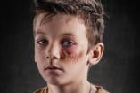 Így nézne ki, ha a szóbeli bántás is sebet hagyna