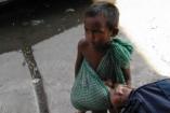 A megcsonkított gyerekek több pénzt koldulnak össze