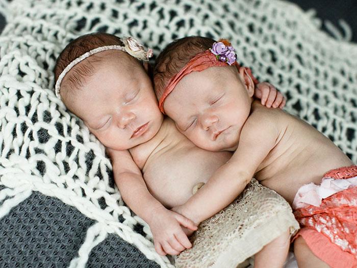 A két éve, egymás kezét fogva megszületett ikrek most is elválaszthatatlanok