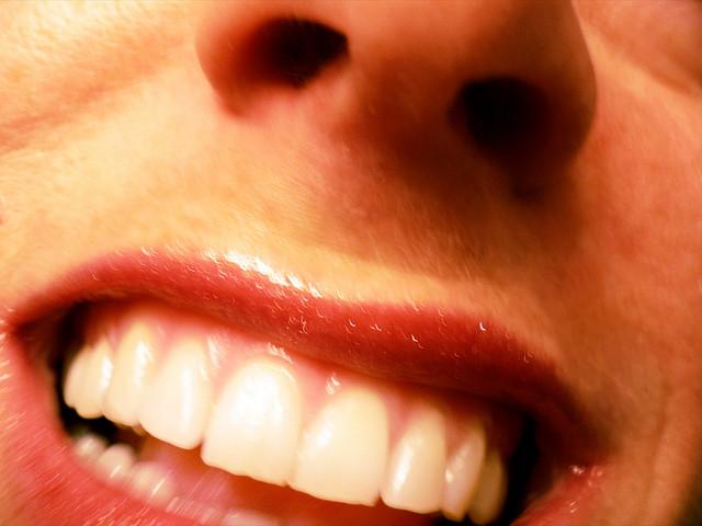 Hogy ne hagyd ott a fogad…