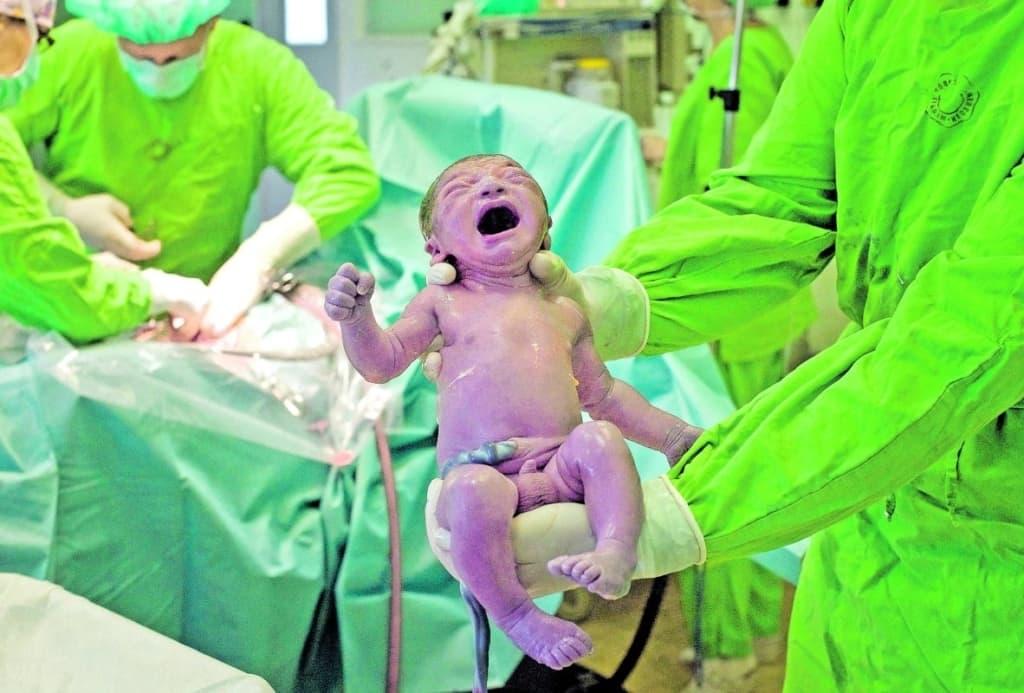 Magyarország: A szülések 40%-ánál alkalmaznak császármetszést